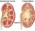 Гидронефроз почек — диагностика и способы лечения