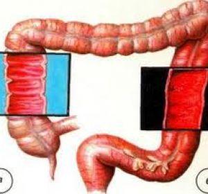 Диагностика и лечение различный видов кишечного колита