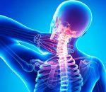 Остеохондроз шейного отдела позвоночника: лечение народными средствами и рецепты
