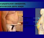 6 типов ожирения — виды патологии, способы терапии, последствия