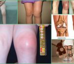 Артрит коленного сустава: причины, симптомы, лечение