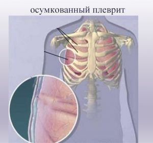 Симптомы плеврита легких у взрослых, осложнения при заболевании