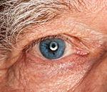 Гетерохромия глаз: что это, виды, причины и лечение