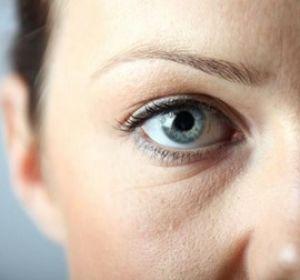 Как быстро избавиться от мешков под глазами?