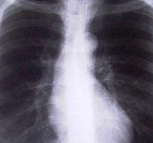 Туберкулез поджелудочной железы: симптомы, диагностика, лечение, риски