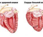 Хроническая сердечная недостаточность: симптомы ХСН, признаки, лечение