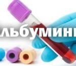 Причины пониженного альбумина в крови у мужчин, женщин и детей