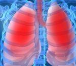 Бронхиальная астма: виды, причины, симптомы, лечение