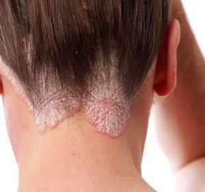 Эритродермия — формы, причины, симптомы и лечение