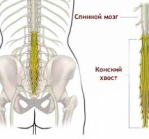 Первые признаки синдрома конского хвоста и способы его лечения