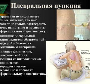 Плевральная пункция: техника проведения и показания