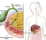 Дисфункция сфинктера Одди: причины ДСО, симптомы и лечение