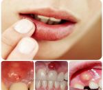 Периостит верхней и нижней челюсти: симптомы и лечение