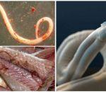 Анизакидоз: виды, причины, симптомы и лечение у человека
