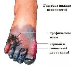 Гангрена нижних конечностей: причины, фото, симптомы и лечение