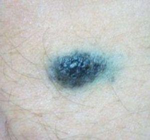 Голубой невус кожи: что это такое, причины, удаление, прогноз