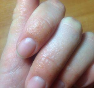 Трескается кожа на пальцах рук — почему появляется и как избавиться