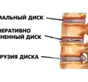 Способы лечения дрозальной протрузии диска