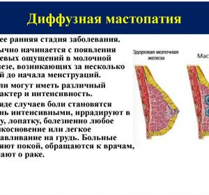 Инволюция молочных желез в пожилом возрасте: что это такое, коррекция