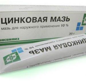 Противовоспалительные мази: лучшие препараты