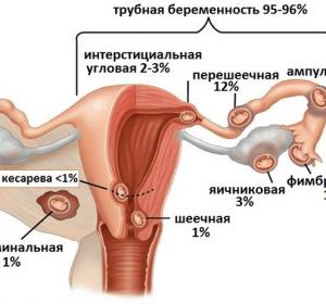 Внематочная беременность – признаки на ранних сроках, симптомы