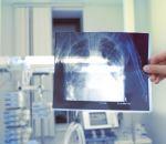 Силикоз: симптомы и лечение болезни легких