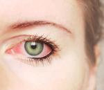 Причины зуда в глазах — аллергия, хроническая усталость, недосыпание