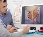 Острая задержка мочи при аденоме предстательной железы — признаки и последствия