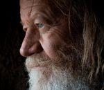 Прогерия: причины, симптомы, лечение синдрома Хатчинсона Гилфорда