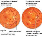 Диабетическая ретинопатия: стадии, симптомы, лечение