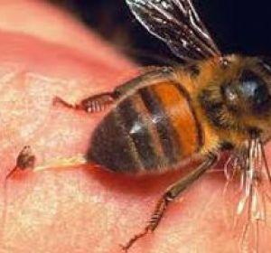 Последствия пчелиного укуса