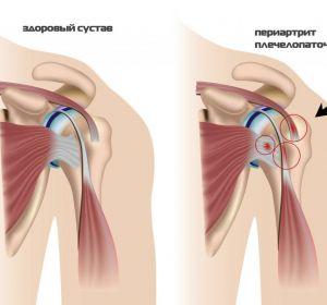 Лечение плечевого периартрита в домашних условиях — препараты и лечебная гимнастика