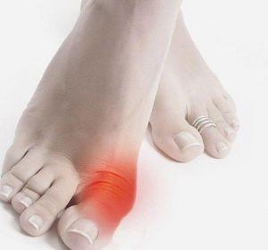 Мазь от подагры на ногах — медикаментозные средства лечения обострения болезни