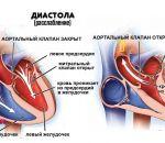 Аортальная недостаточность: виды, причины, симптомы и лечение