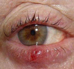 Лечение ячменя на глазу — самые эффективные и быстродействующие методы!