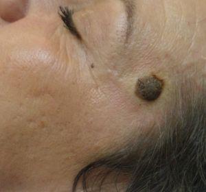 Веррукозный бородавчатый невус: фото, опасность, благоприятный прогноз, удаление