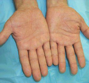 Дисгидротическая экзема: причины, признаки, симптомы и лечение