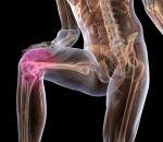 Пателлофеморальный артроз коленного сустава: симптомы, лечение