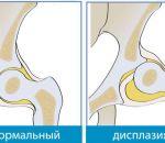 Дисплазия тазобедренных суставов — причины, признаки у детей и взрослых, лечение и последствия