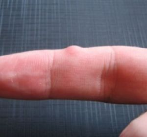 Гигрома на пальце руки фото