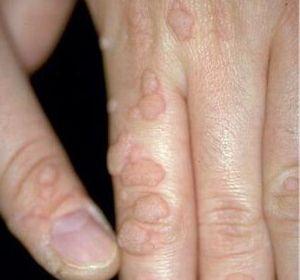 Косметическое лазерное удаление бородавок: описание метода