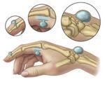 Гигрома запястья — диагностика и способы лечения