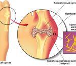 Симптомы подагры у женщин — первые признаки проявления болезни и диагностика