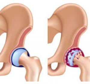 Коксартроз тазобедренного сустава: причины и лечение заболевания