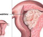 Аденокарцинома матки: ключевые симптомы, стадии, лечение