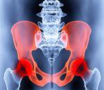 Остеоартроз — причины, признаки, симптомы и лечение