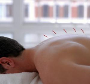Лечение остеохондроза методом иглоукалывания