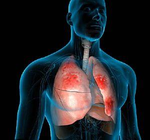 Диссеминированный туберкулез легких: пути заражения и диагностика