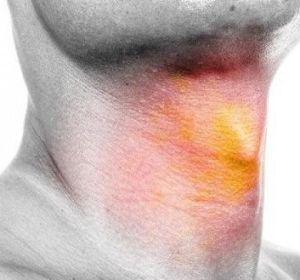 Проявления и лечение ларингита у взрослых