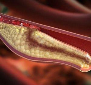 Мезентериальный тромбоз — стадии, диагностика и клинические рекомендации